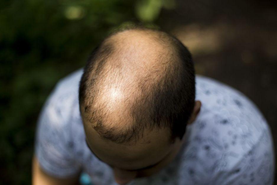Alopecia la bărbați