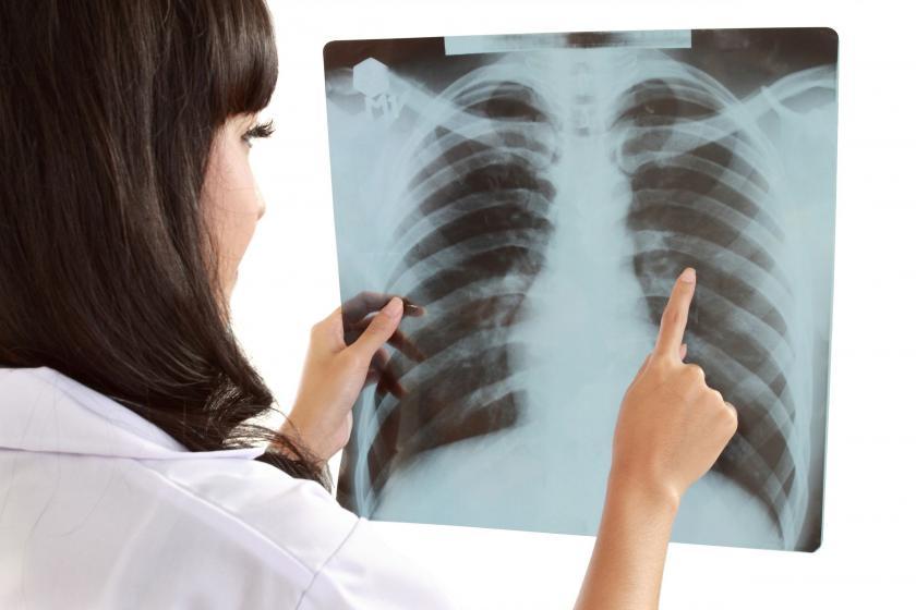 Flegm în gât - radiografie a plămânilor