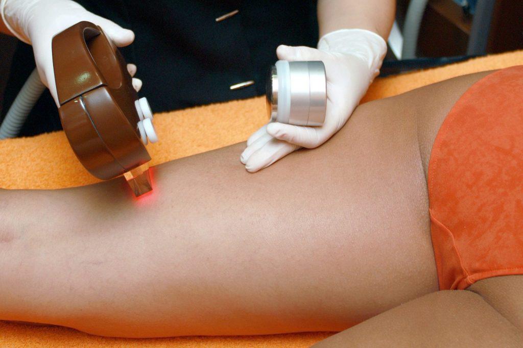 tratament cu epilare cu laser