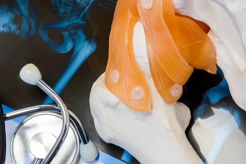 tratamentul artritei