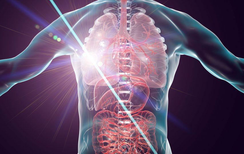 Terapia cu laser ca metodă de tratament