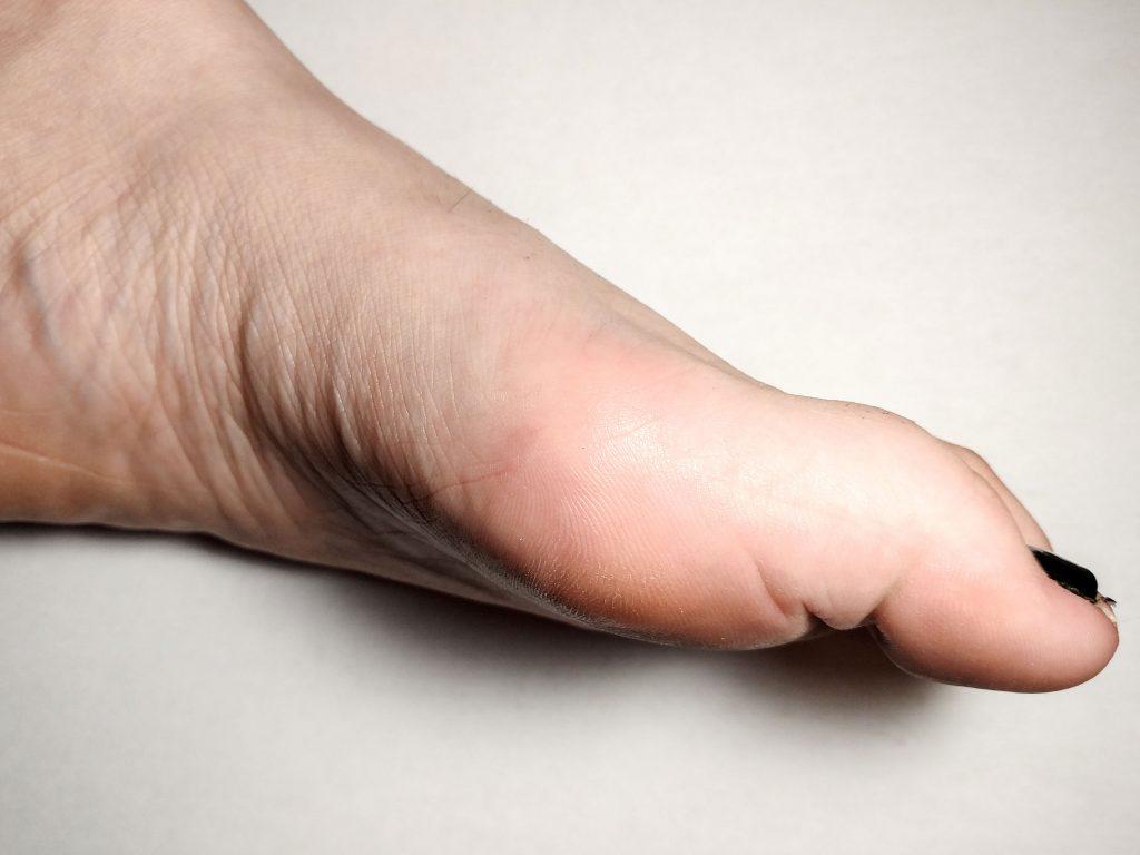 Tratamentul modificărilor unghiilor