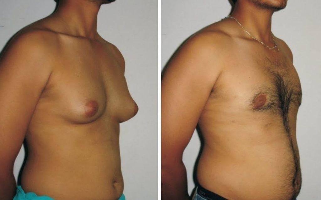 ginecomastie - sânul unui bărbat
